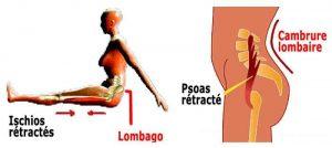retraction 300x134 - Micro-pauses actives pour les douleurs aux hanches & au bas du dos